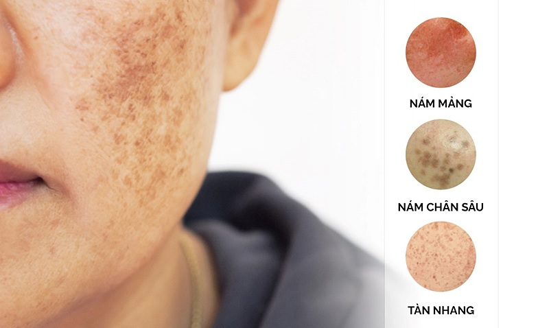Cách trị nám da mặt lâu năm bằng công nghệ cao