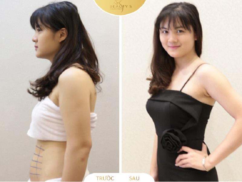 3 phương pháp giảm mỡ bụng hiệu quả mà bạn nên biết